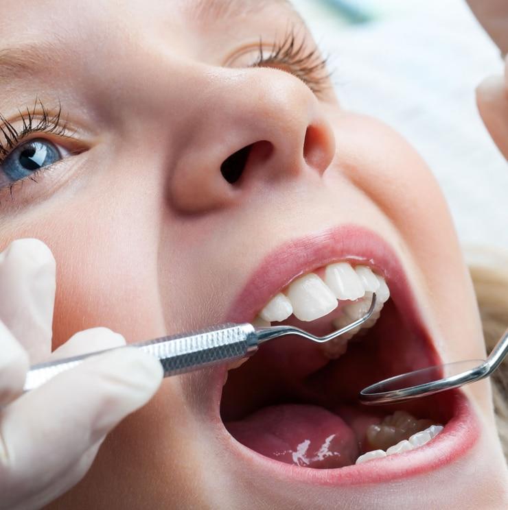 ¿Cuándo necesitan ortodoncia los niños?