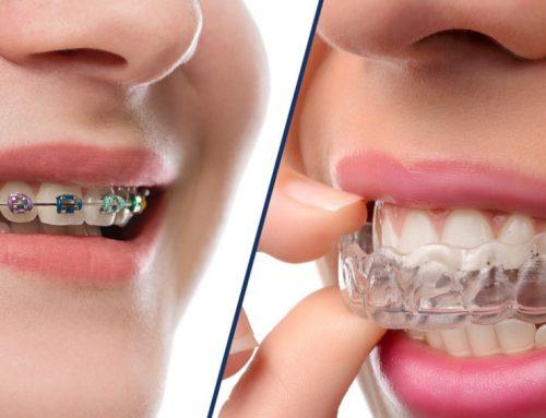 Qué es la ortodoncia invisible o invisalign