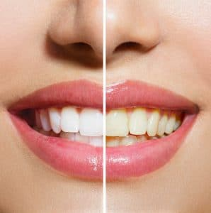 Dentista en Móstoles