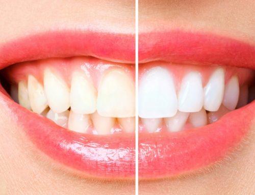Ventajas de un blanqueamiento dental