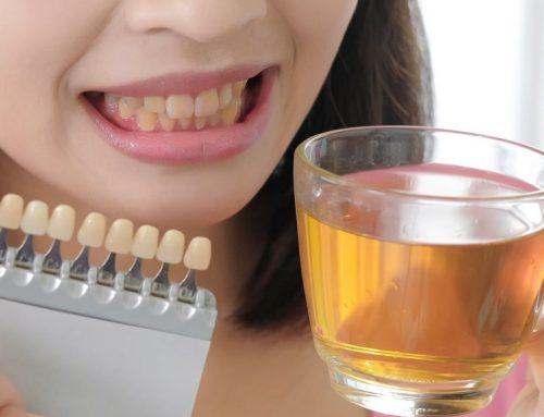 Manchas dentales: Qué alimentos manchas mis dientes