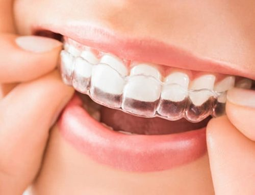 Ortodoncia Invisalign: ventajas y cuidados